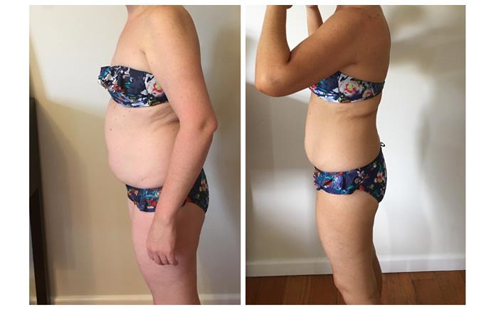 tara-before-and-after